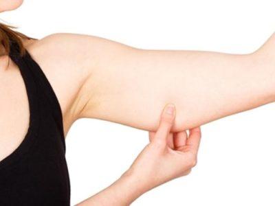 二の腕のお肉をつかむ女性